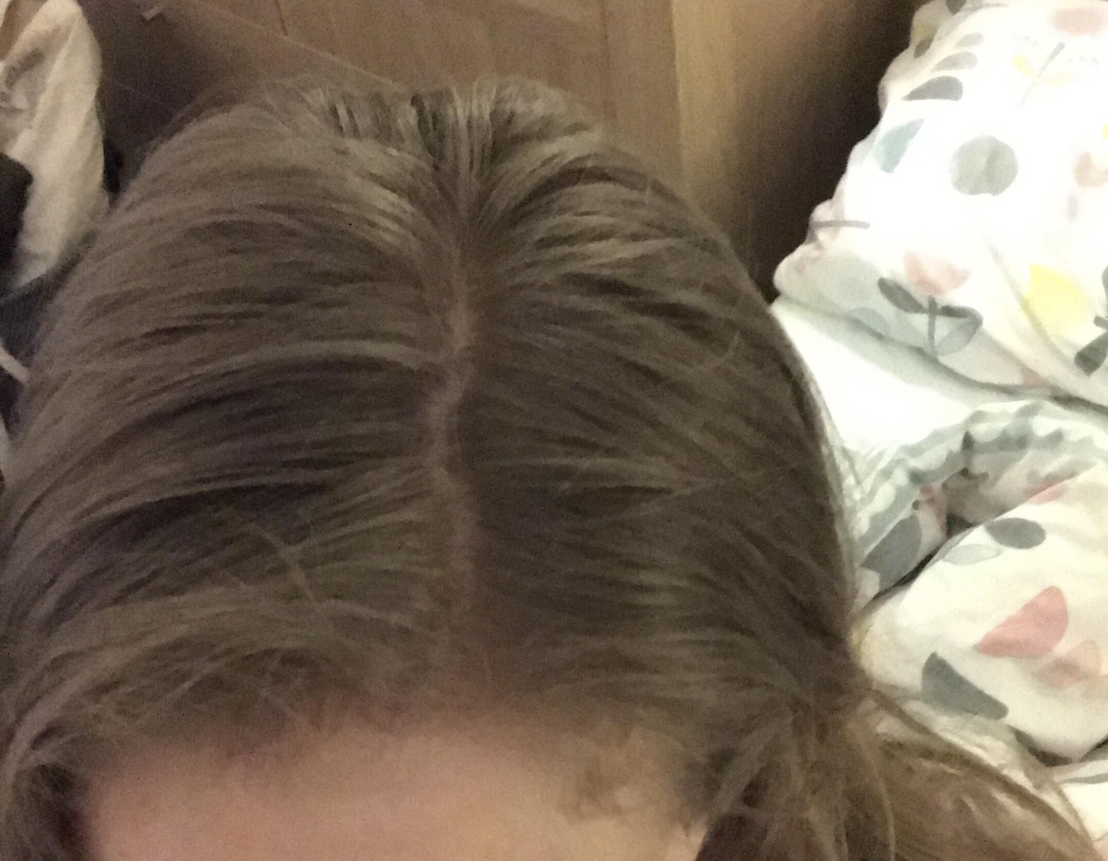 Help Lots Of Fine Hair Greasy Later The Same Day After I Wash It The Bulk Of My Lower Hair Has Good Natural Volume And Greasy Hair Hairstyles Fine Hair Hair