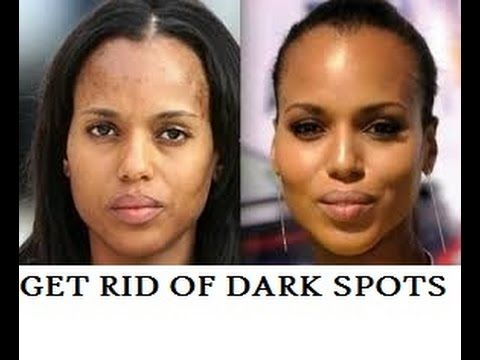How to lighten dark spots on face overnight