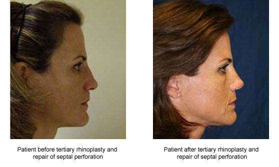 Pin By Vee Petranek On Rhinoplasty Surgeon