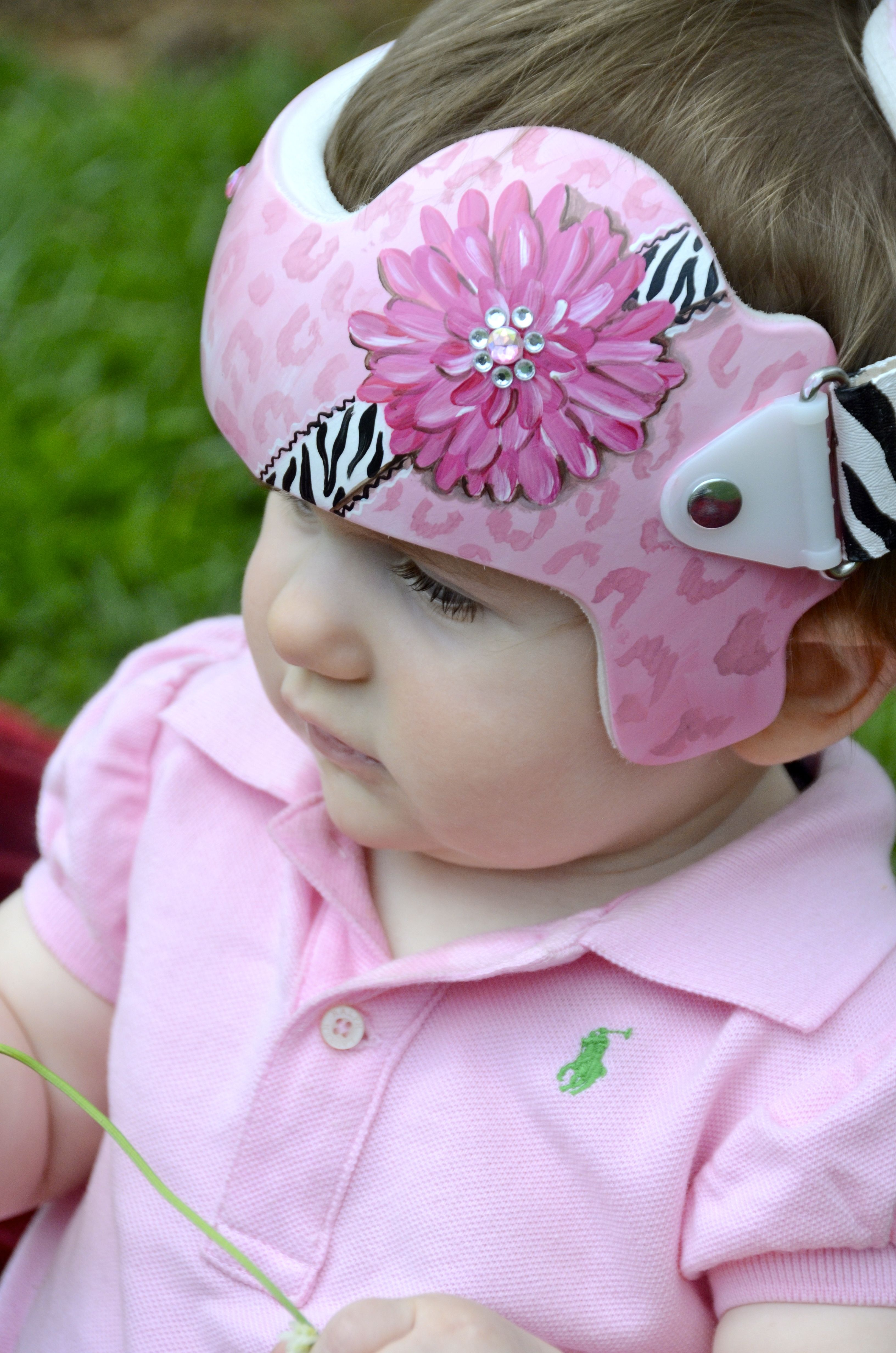 Velcro Bow To Baby Helmet For My Kids Pinterest Baby Helmet - Baby helmet decalsa family blog that takes you through the experience of a baby with