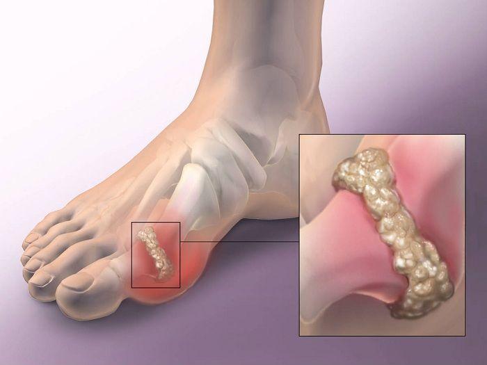 izületi gyulladás lábfej bokaízület előkészítése