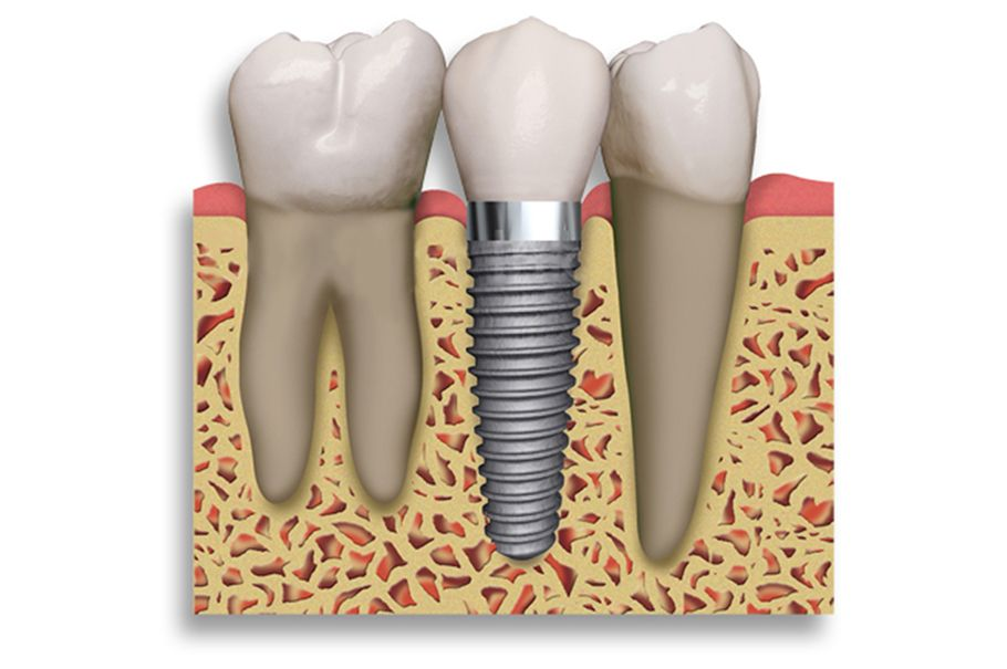 Dental implant is a surgical component that support a