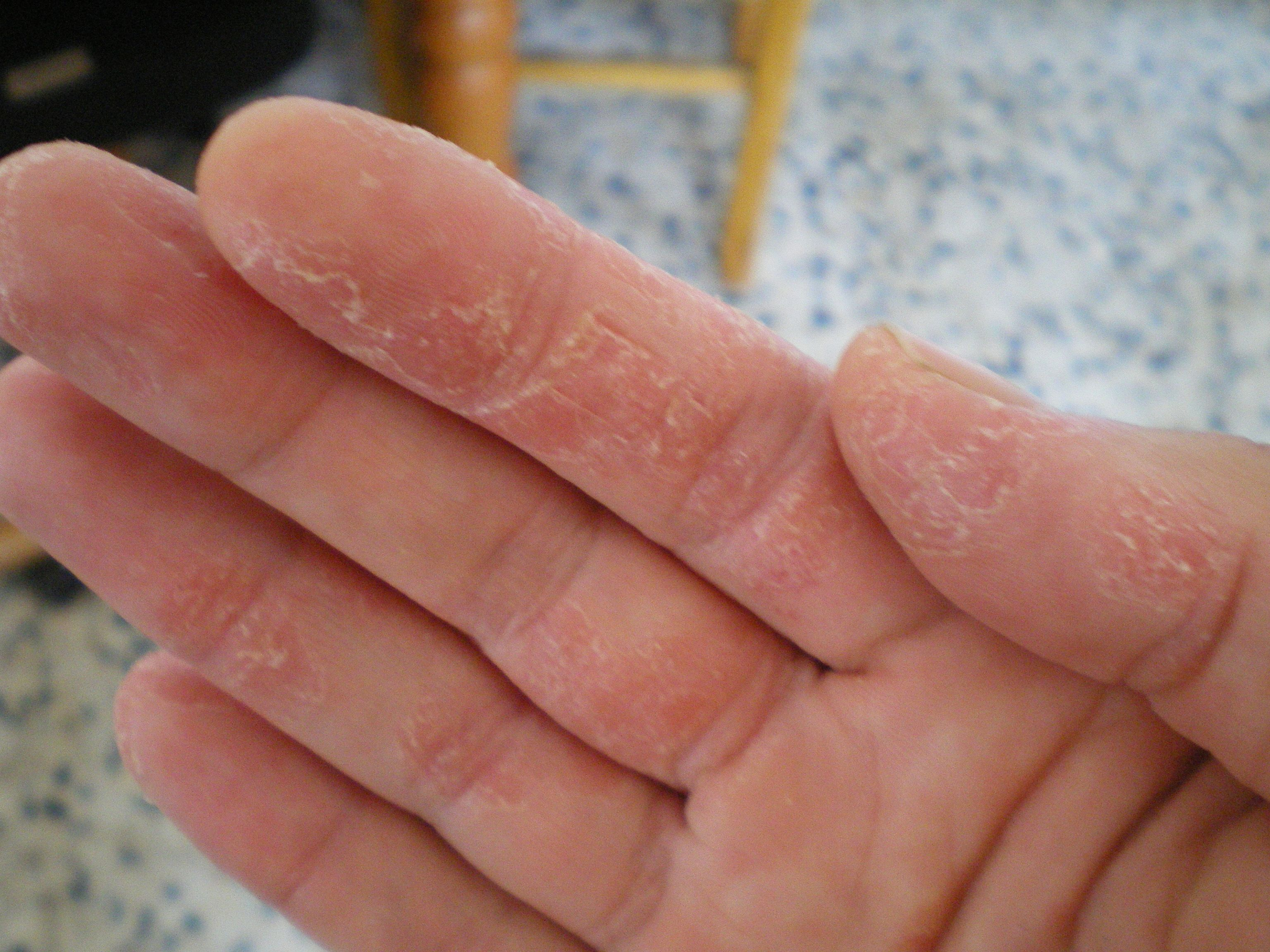 Eczema Skin Peeling On Hands Also visit my web-site about ...