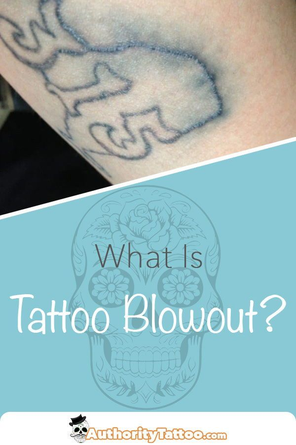 What Is Tattoo Blowout & Can You Fix It