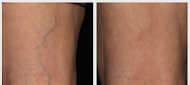 #Asclera® (polidocanol) Injection is a prescription medicine that is used in a procedure called sclerotherapy to remove unwanted veins on your legs. It is administered by a healthcare provider to treat two types of veins:  Uncomplicated spider veins (very small varicose veins known as reticular veins http://www.heckerderm.com/procedures/cosmetic-procedures/laser-spider-vein-treatment/ or call to schedule a consultation.Phone: (954) 783-2323