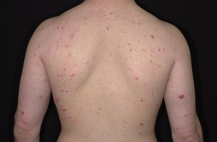 an understanding of eczema Advances in understanding eczema pathogenesis have provided opportunities  for patient stratification, primary prevention, and therapy.