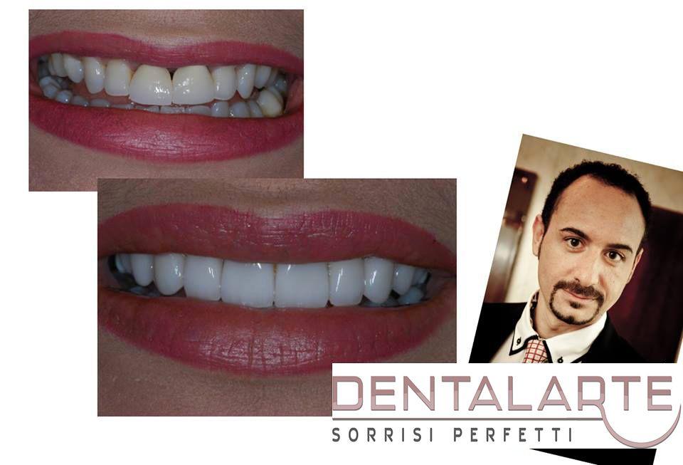 Estetica Dentale con Faccette Dentali in Ceramica. Il Dr Cannizzo ama la perfezione ma l'impegno non basta.Ci vuole TALENTO. www.dentalarte.eu