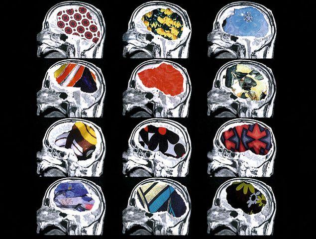 Neuro moda