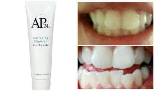 bästa whitening tandkrämen