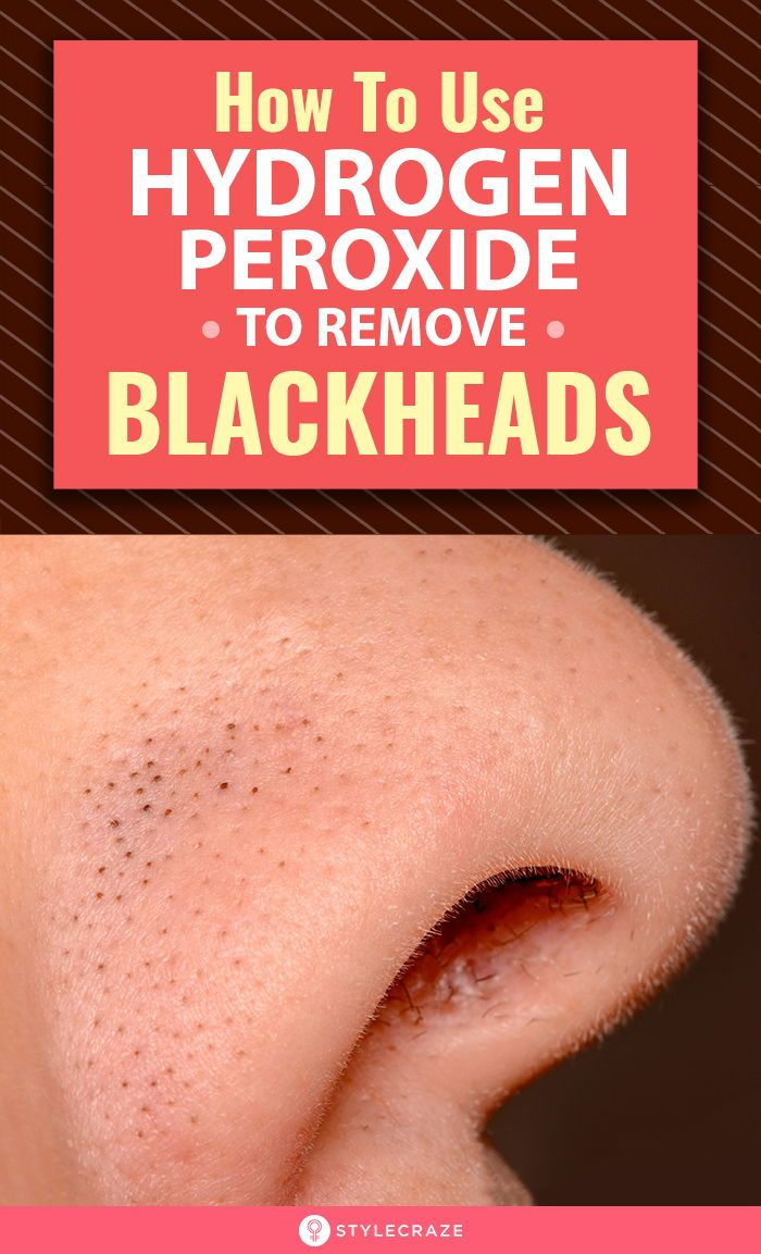 How To Use Hydrogen Peroxide To Remove Blackheads?