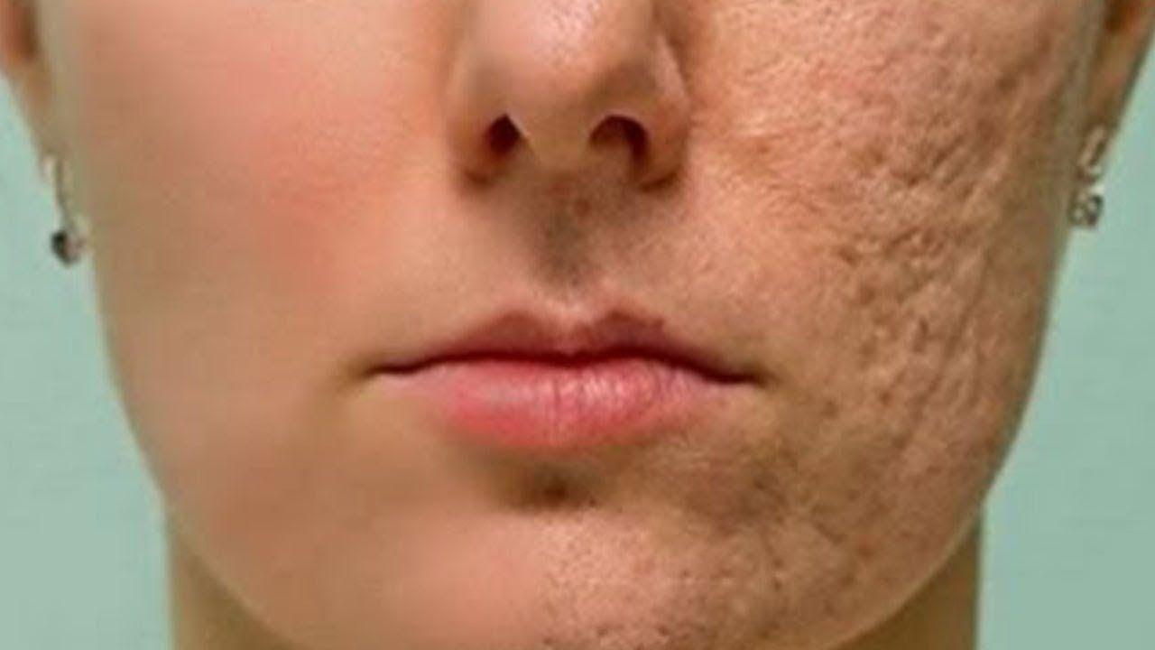 Reibe Diese Mixtur Auf Deine Haut Narben Und Falten Verschwinden Inner Akne Narben Entfernen Aknenarben Narbenbehandlung