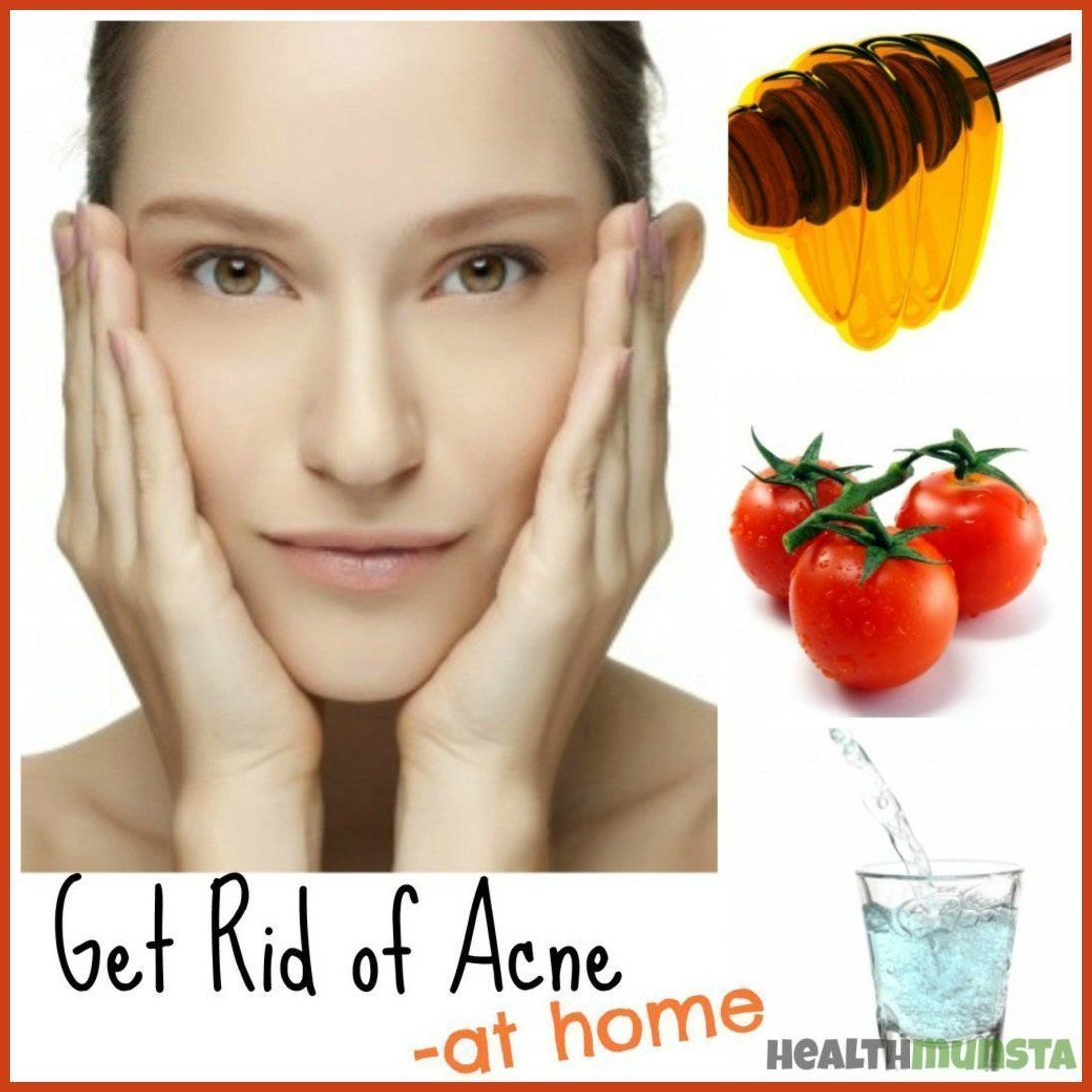 Folk remedy for acne at home 44