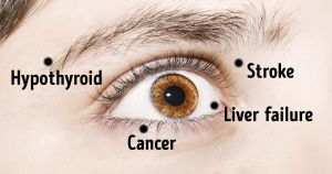 8Things Your Eyes Are Trying toTell You About Your Health