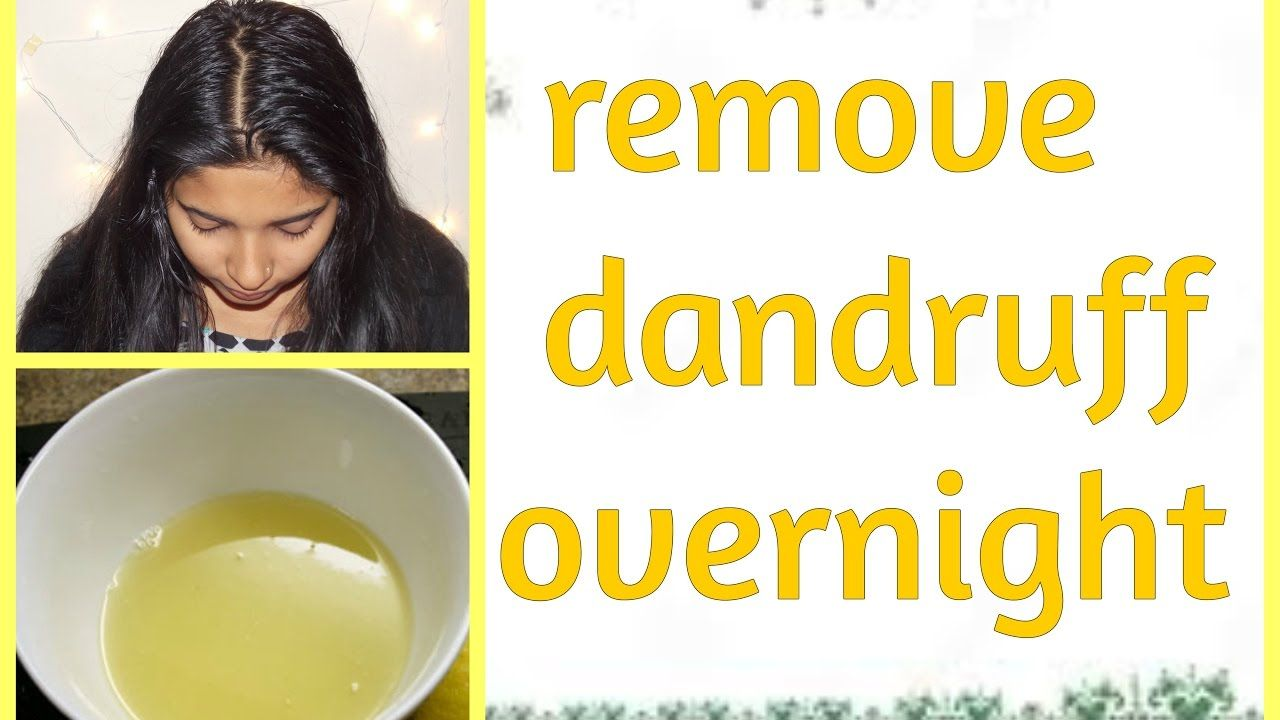 How to get rid of dandruff with mouthwash in 2020