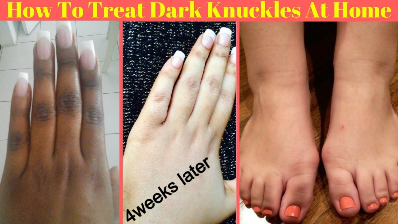388b08a734d7ccc404a3bf79f182a3c3 - How To Get Rid Of Callus On Toes Permanently