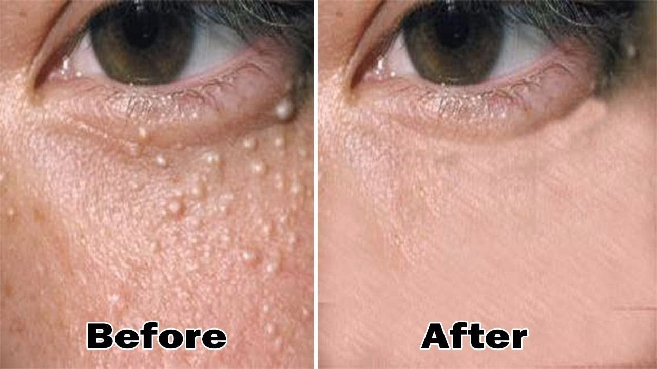 3890d297de590498958bef293a00ef13 - How To Get Rid Of Hard White Bumps On Face