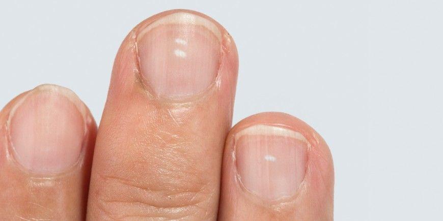 Taches blanches sur les ongles : l'alimentation en cause | Tache blanche ongle, Ongles blancs ...