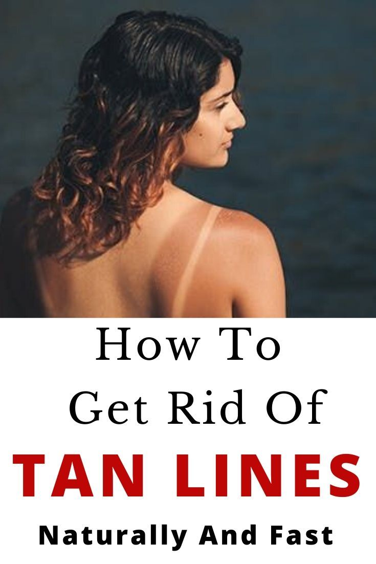 How to get rid of tan lines naturally and fast get rid