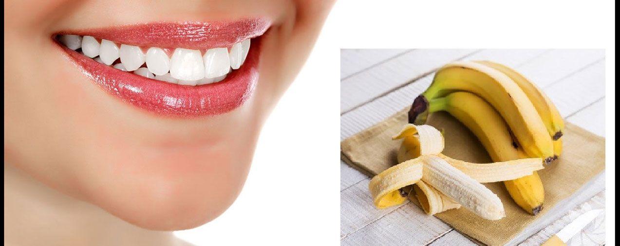 Muz Kabuğunun Bilinmeyen 4 Faydası Bitki Cilt Ciltproblemi Diş
