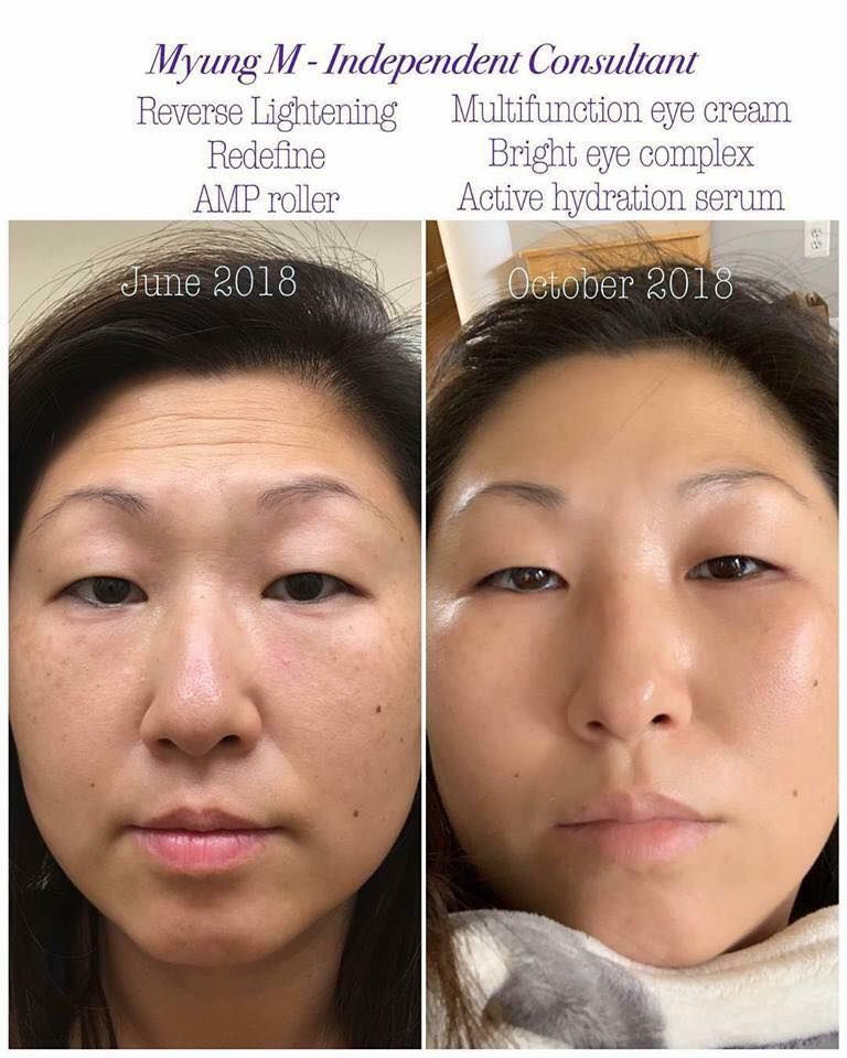 What S Your Main Skin Concern Uneven Skin Tone Sensitivity And Redness Acne Wrinkles Large Pores Looking Skin Care Solutions Skin Care Premium Skincare