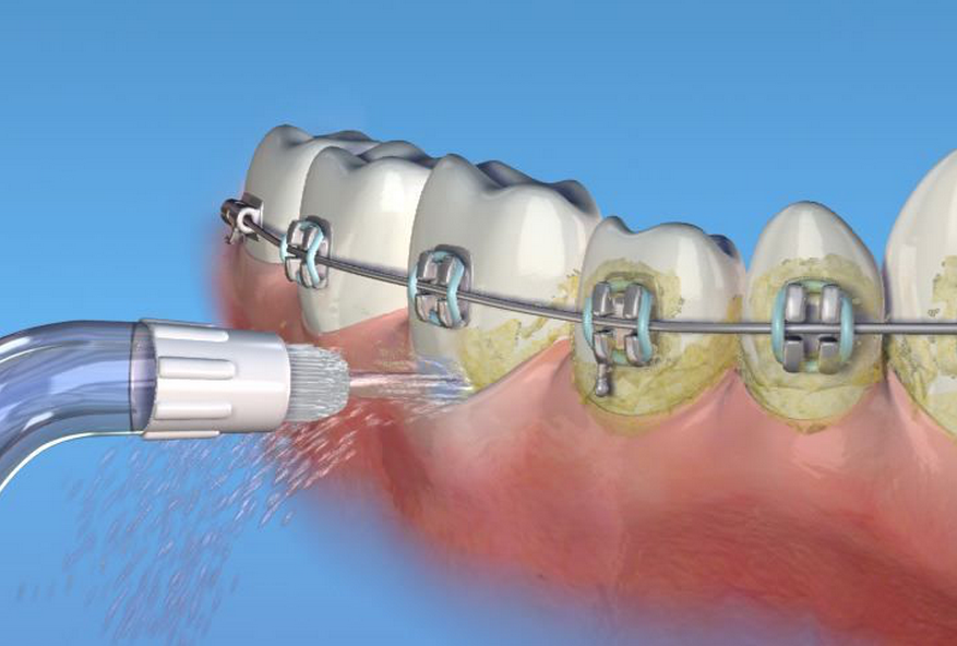 removing plaque around braces with a water pick dental education pinterest braces teeth. Black Bedroom Furniture Sets. Home Design Ideas