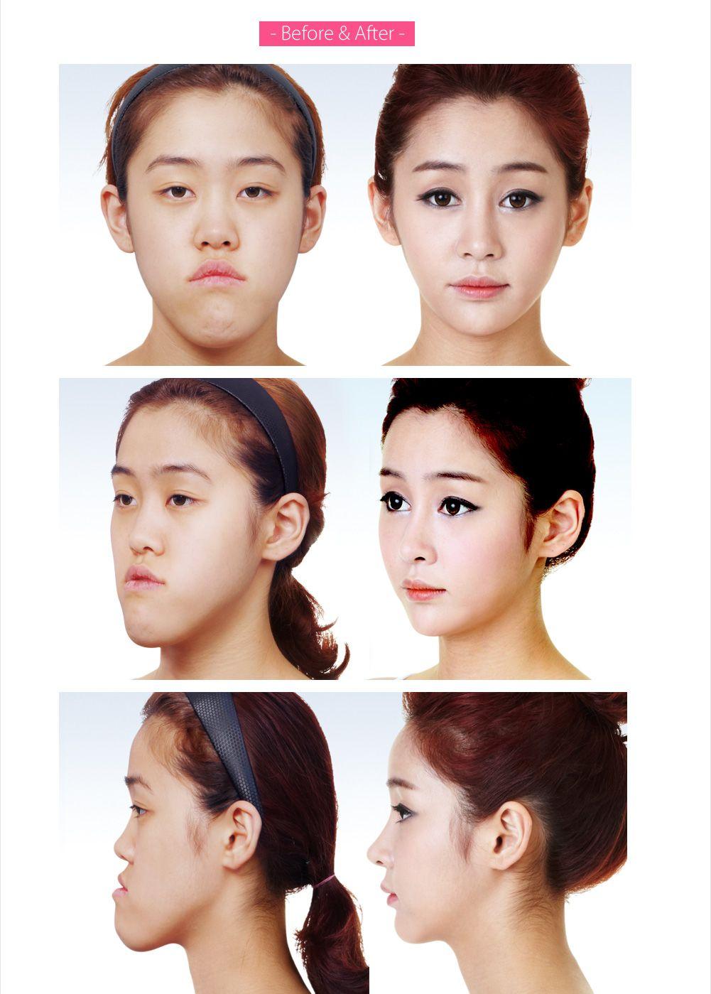 Let Me In Huh Ye Eun Looks