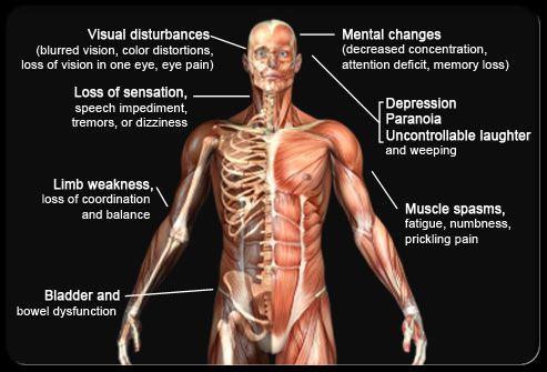 What is muscular sclerosis?
