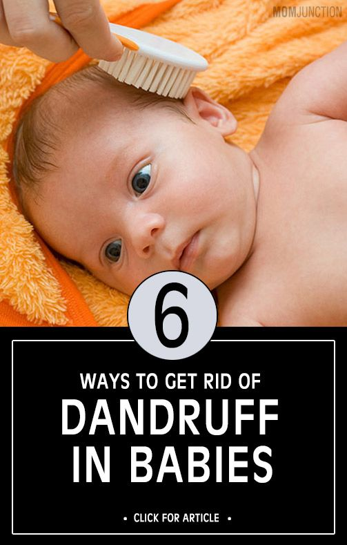 6 Ways To Get Rid Of Dandruff In Babies Baby Dandruff Baby Dry Scalp Baby Dry Scalp Remedies