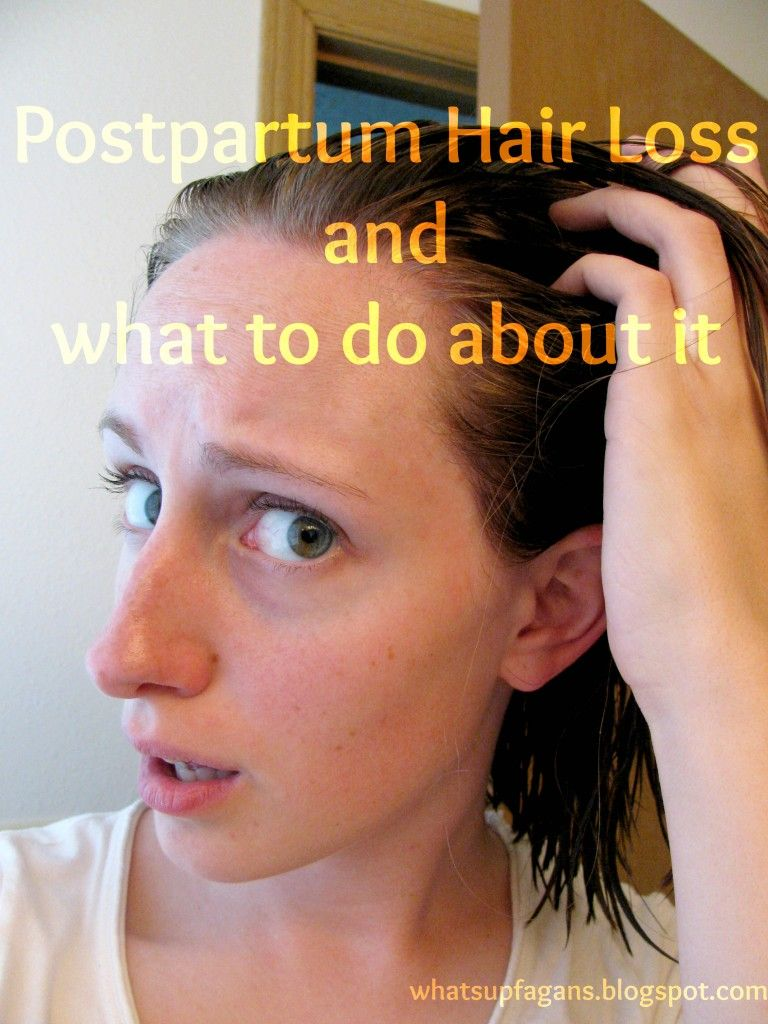 Hair loss after childbirth: what to do