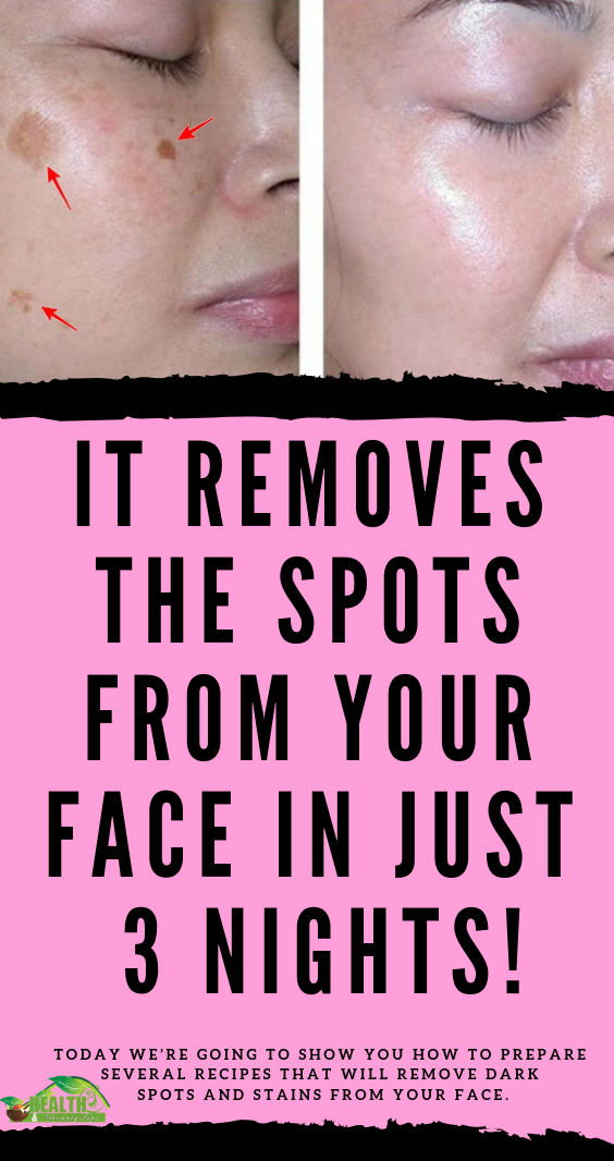 AMAZING: This 2-Ingredient Remedy Removes All Spots From Your Face -   18 makeup Beauty remedies ideas