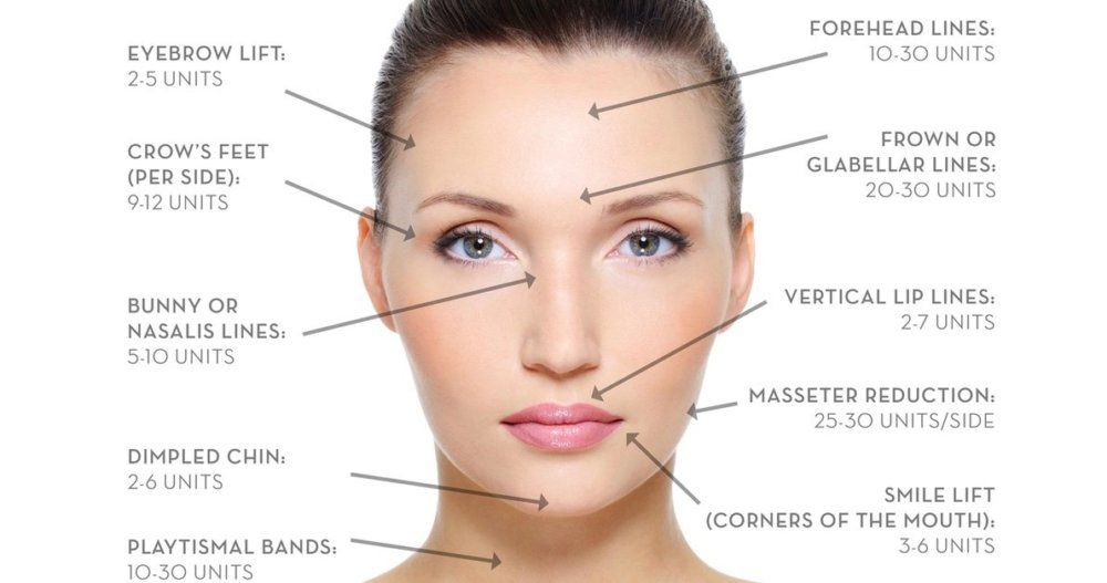 How long does it take for botox to work after injection