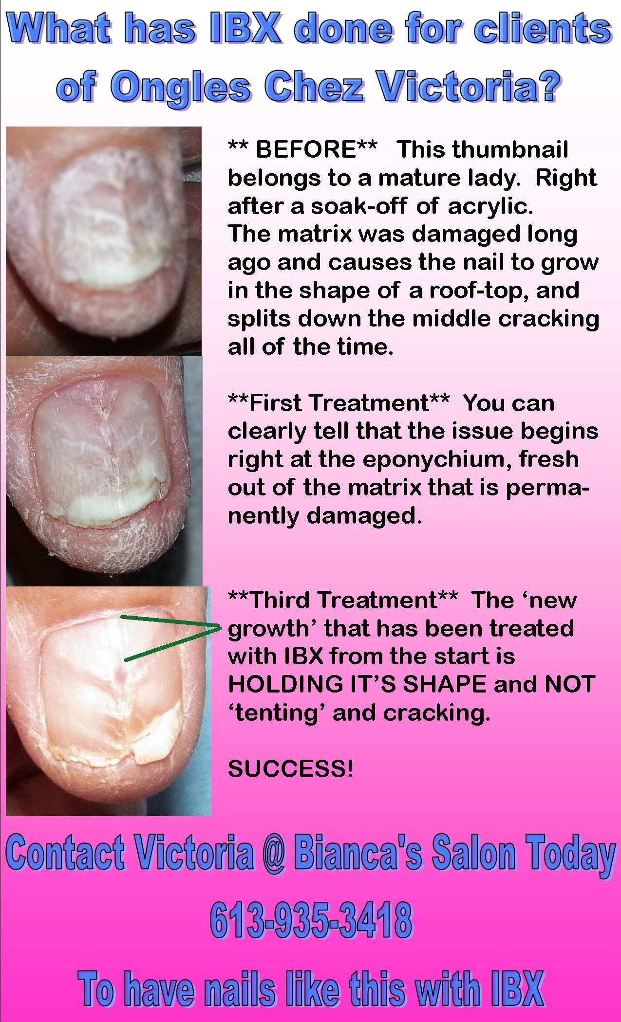 IBX repair SEVERE damage | IBX Nail Repair | Pinterest | Nail repair ...