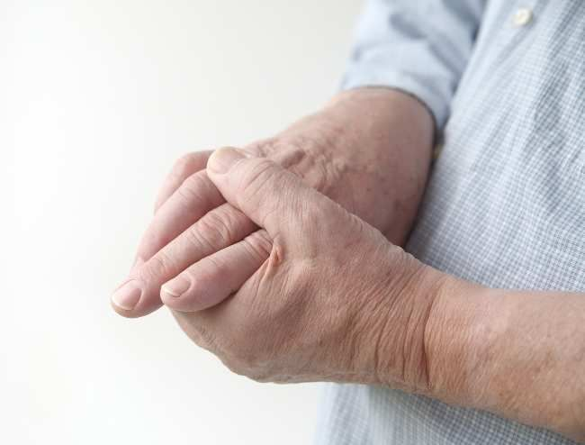 Gout Treatment : A Particular Form Of Arthritis, Here We Could Find The Best…