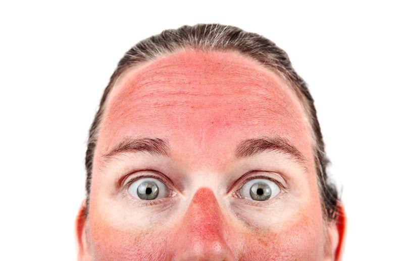 Essential Oils for Sunburn - Balance Me Beautiful
