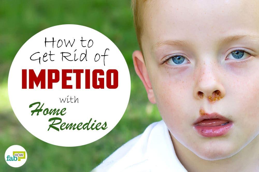 How To Get Rid Of Impetigo With Home Remedies Impetigo Chest