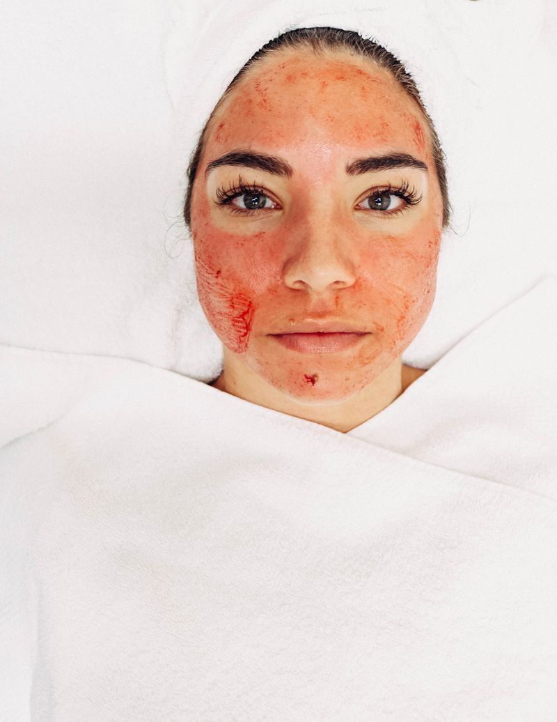WTF Is A Vampire Facial And Is It Even Safe images