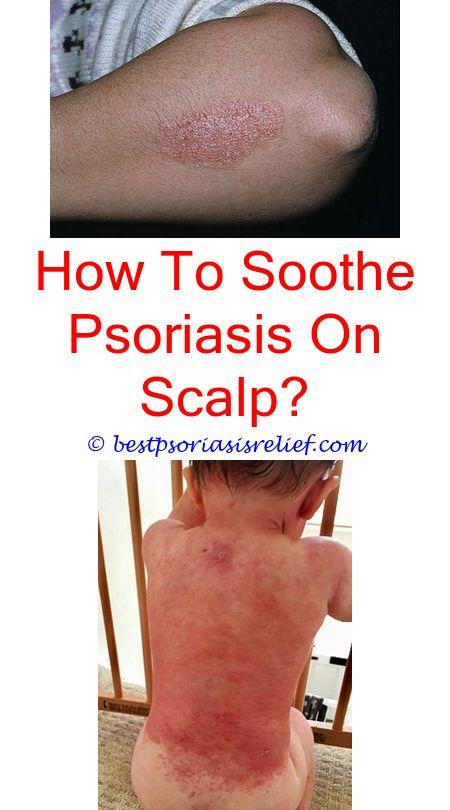 psoriasis på penis glans