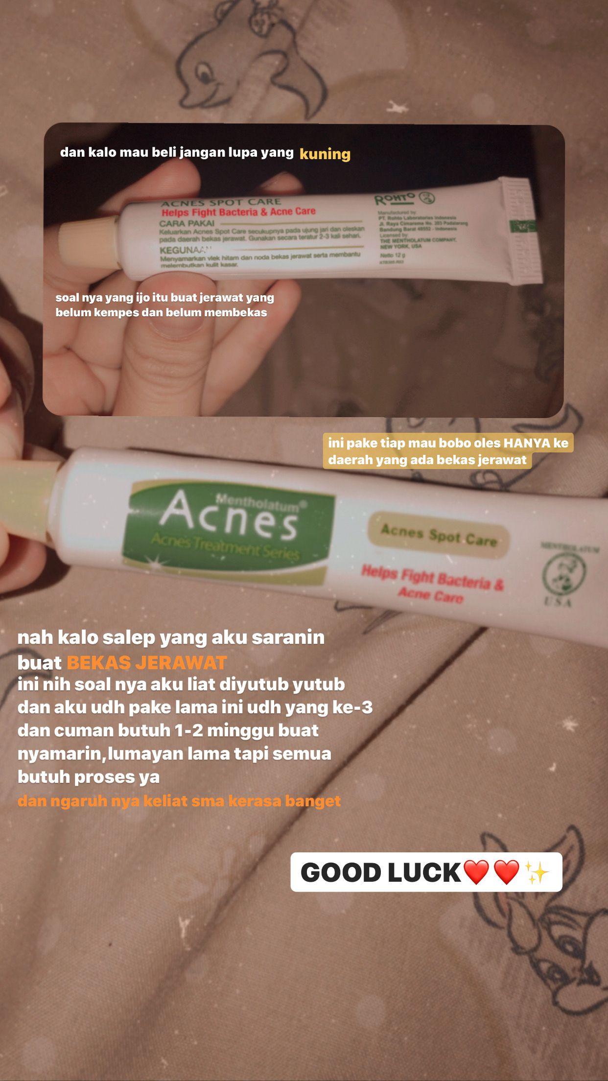 Sabun Muka Acnes Untuk Menghilangkan Bekas Jerawat