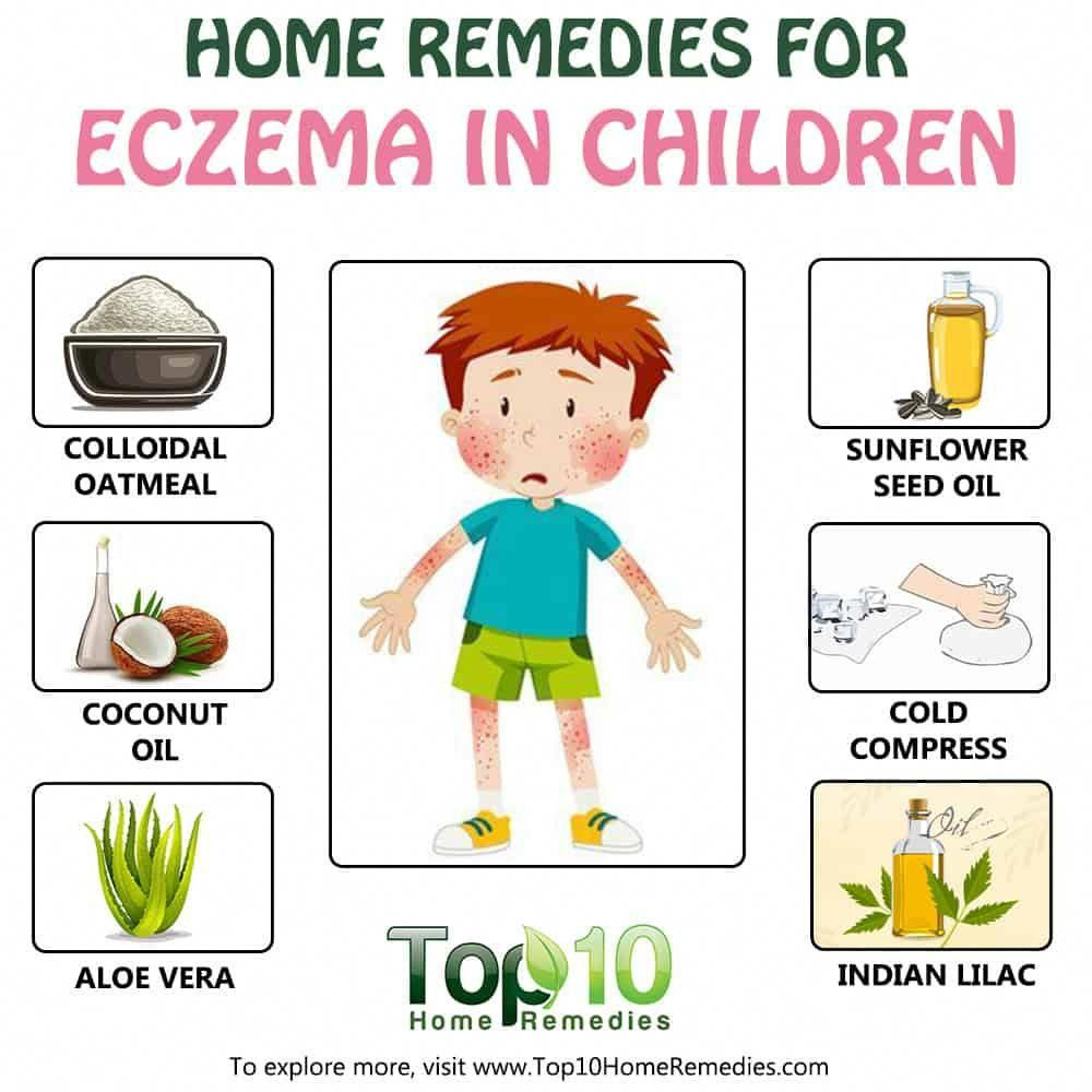 Natural Remedies For Eczema In Children Home Remedies For Eczema