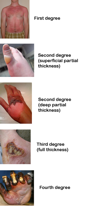 Burn Degrees Burns Nursing Burn Injury Emergency Medical
