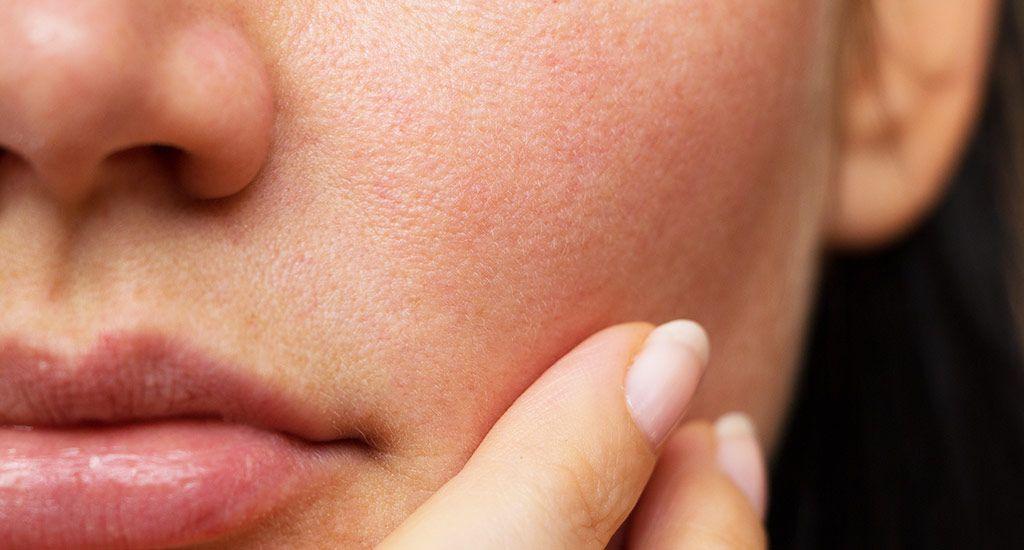 Pores Dilatés Routine Naturelle Pour Resserrer Son Grain De Peau Beauté Chérie Pores Dilatés Astuces Beauté Visage Masque Naturel Visage