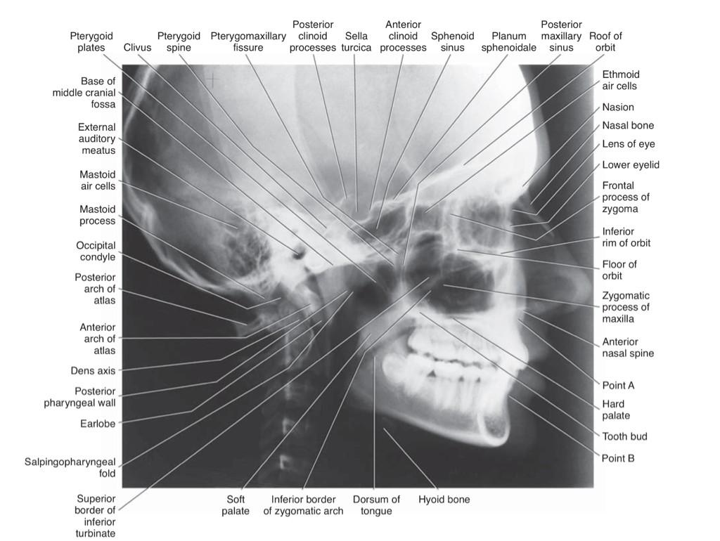 129 best goop be gone dental images on pinterest dental board cephalometric analysis lateral cephalogram xflitez Gallery