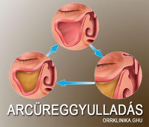 a térd artrózisának diagnosztizálása 2 fokkal az ízületek nyújtás után nyúlnak