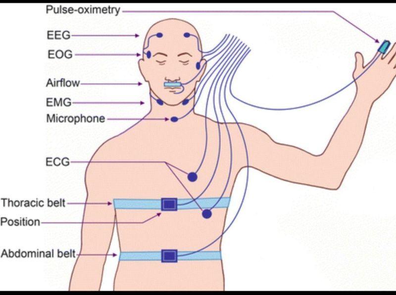 گزارش کاملی از سیگنالهای Eeg و مطالعات مراحل مختلف خواب Polysom By Biomedical Admin Disney Characters Fictional Characters Character