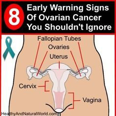Photo of Doctors Warn About 8 Early Signs Of Ovarian Cancer That Many…