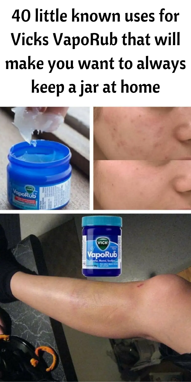 40 little known uses for Vicks VapoRub that will m