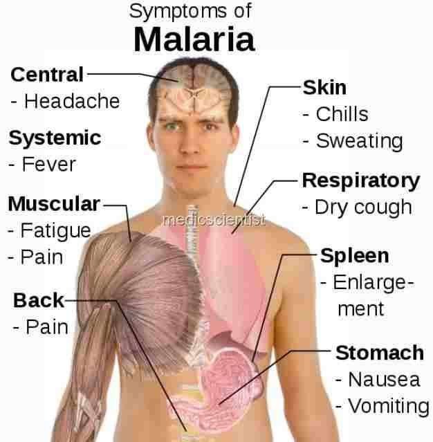 malaria fever signs and symptoms clinical findings with malaria stages malaria symptom diagram #9