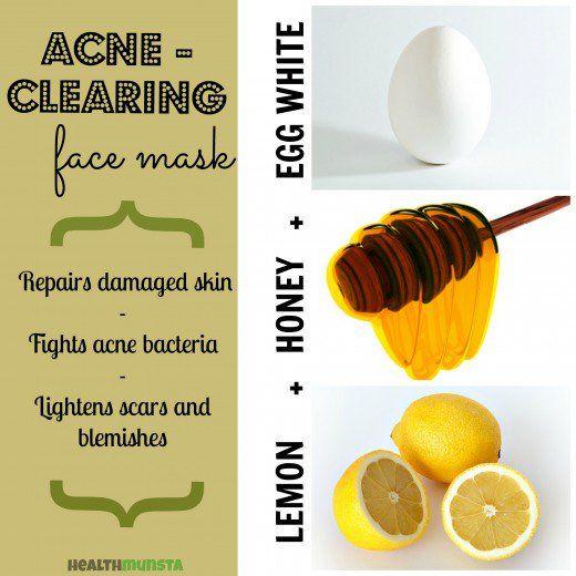 face acne for Homemade masks