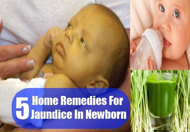 5 Home Remedies For Jaundice In Newborn Jaundice Baby Jaundice