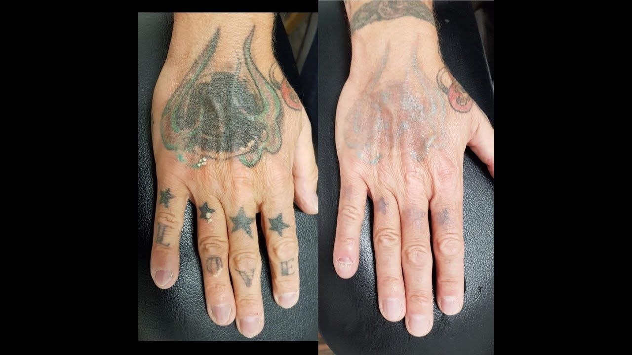 The Best Way To Remove Permanent Tattoo At Home Permanent Tattoo Tattoo Removal Laser Tattoo